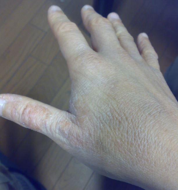 アトピー改善前の手