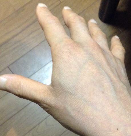 アトピー改善後の手